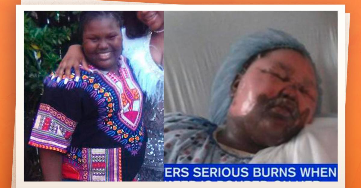 Niña de 11 años fue atacada con agua hirviendo